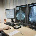 La inmunoterapia consigue por primera vez eliminar un cáncer de mama