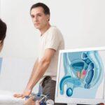 Latinoamérica busca consenso sobre detección de cáncer de próstata