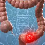 Chile: Inmunoterapia puede evitar muertes por cáncer colorrectal