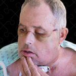 Médicos de Montreal anuncian primer trasplante de cara en Canadá