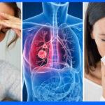 Tos nocturna impide sueño reparador y compromete el sistema inmune