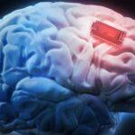 """Desarrollan un """"marcapasos cerebral"""" para tratar la epilepsia y el parkinson"""