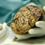Descubren permeabilidad capilar en el cerebro que fomenta el Alzheimer