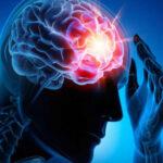 Estudio determina que el hispano es más propenso a enfermedades cerebrovasculares