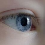 Glaucoma en recién nacidos es reversible si se detecta a tiempo