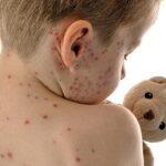 El sarampión alcanza un récord en EEUU desde que se erradicó la enfermedad