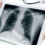 La supervivencia del cáncer de pulmón avanzado empieza a contarse en años