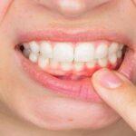 Algunos patógenos de la boca provocan un cáncer oral muy agresivo